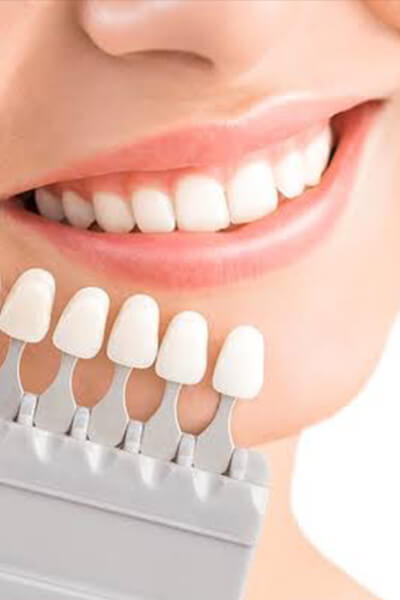 Self Dental Whitening